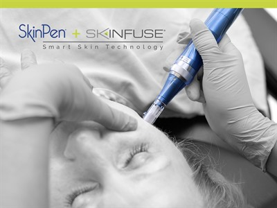 SkinPen Microneedling Procedure Photo